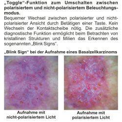 HEINE DELTA® 20T LED Dermatoskop-Kopf mit Skala